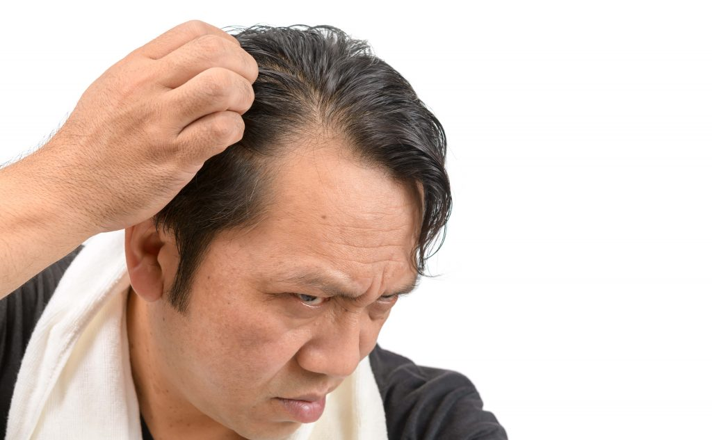 Who is suffering from alopecia areata?